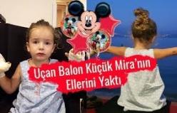 Uçan Balon Küçük Kızın Ellerini Yaktı